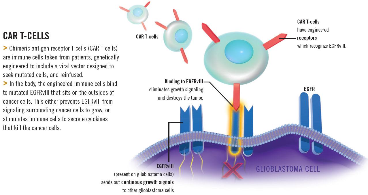 Medical Illustration: Novel Treatments for Glioblastoma