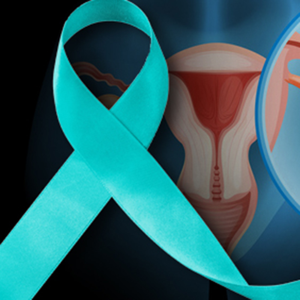 Better Understanding of Ovarian Cancer Is Needed, Expert Says