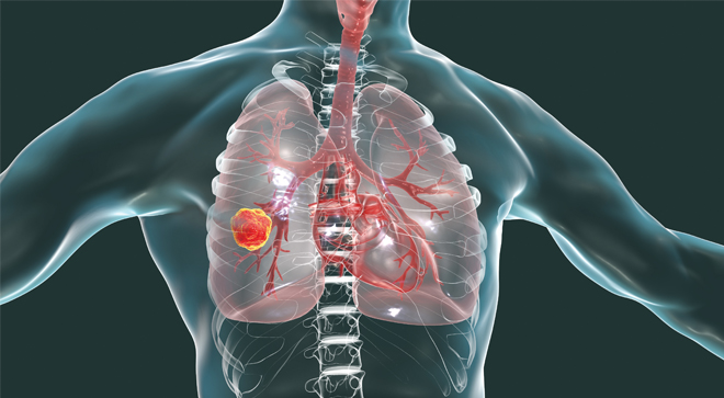 lung cancer small cell lung cancer radiotherapy