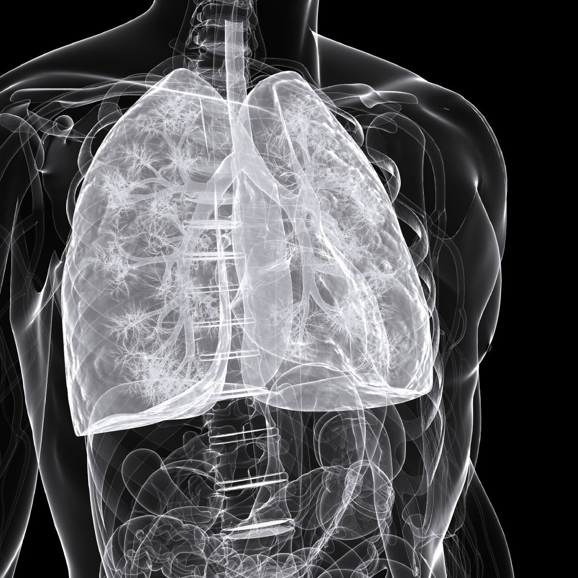 Keytruda Shows Benefit in Small Cell Lung Cancer