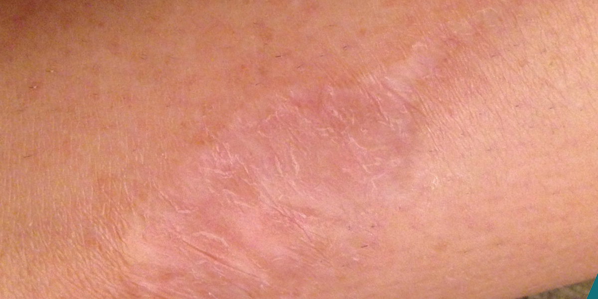 Keeping Up Appearances: Minimizing Scarring After Skin Cancer Surgery