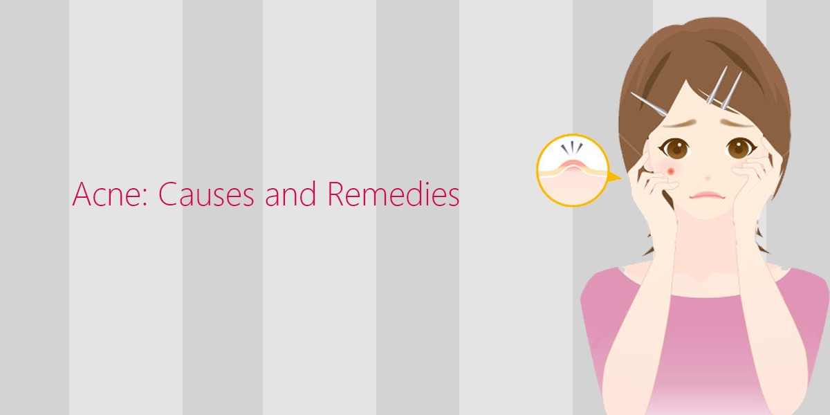 A stress free life can get you acne- free skin