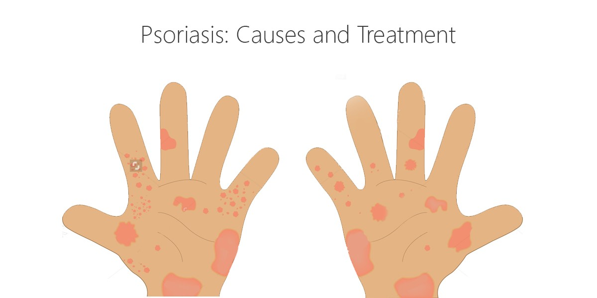Psoriasis: could your medications be worsening it?