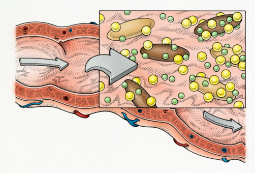 Study Sees Link Between High Cholesterol and Tendon Trouble