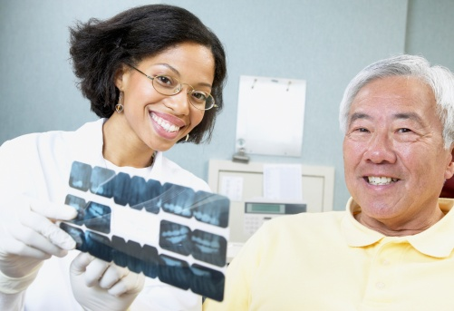 Fillings May Harm Neighboring Teeth