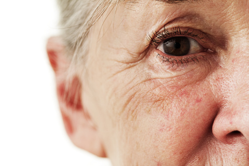 Acne's Silver Lining: Slower Aging of the Skin?