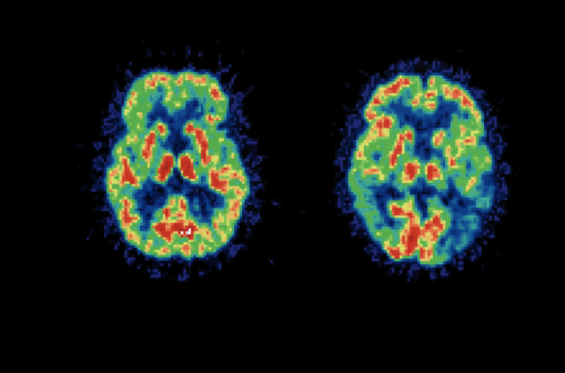 Poor Sense of Smell May Signal Alzheimer's Risk