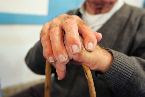 New Drug for Severe Form of Arthritis Shows Promise in Trial