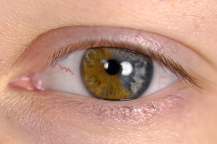 Study Finds Characteristics Likely to Predict Conversion to AMD in Second Eye in Patients Treated With Anti-VEGFs