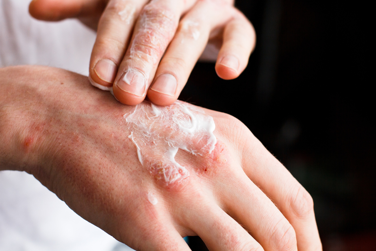 Study Shows Higher Incidence of Psoriasis in Patients With PCOS