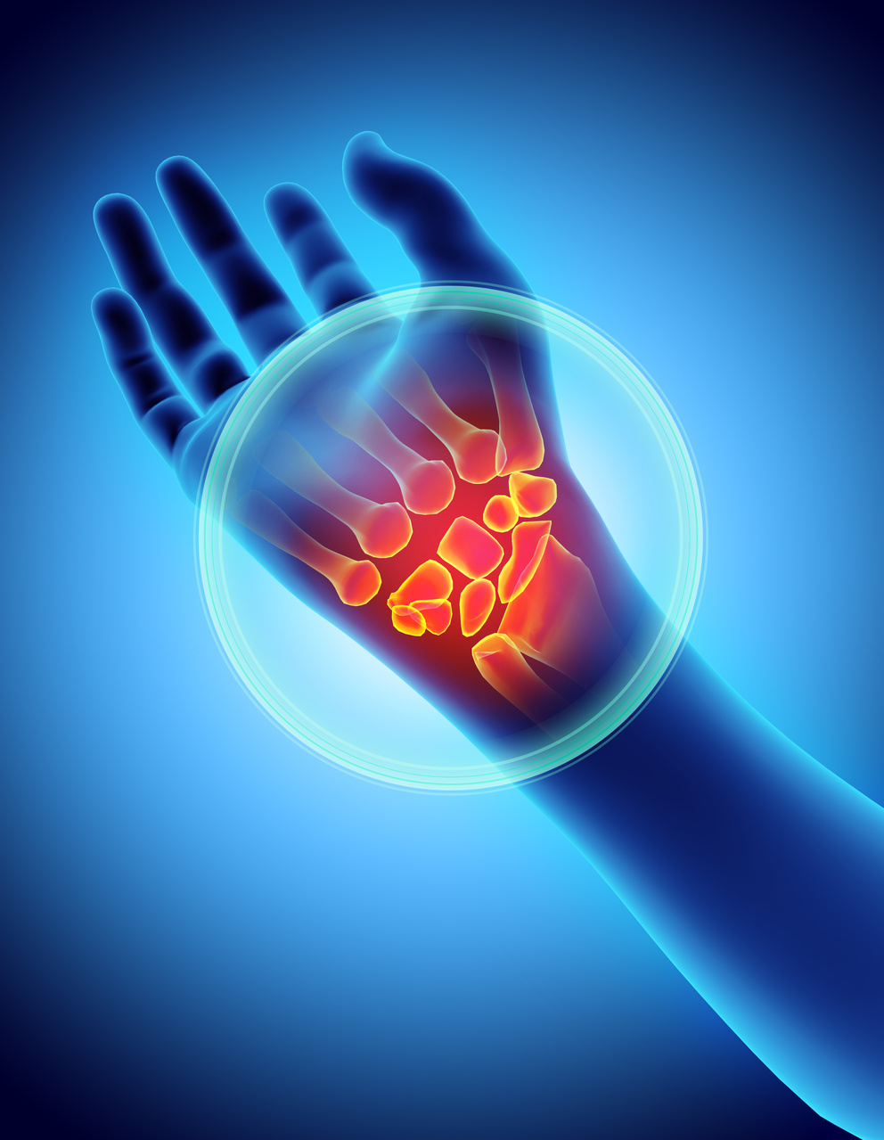 Study Clarifies New Understandings About Timing of Psoriasis, Arthritis in Patients With PsA