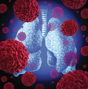 Bevacizumab Could Help Patients With NSCLC Who Cannot Receive PD-1 Inhibitors