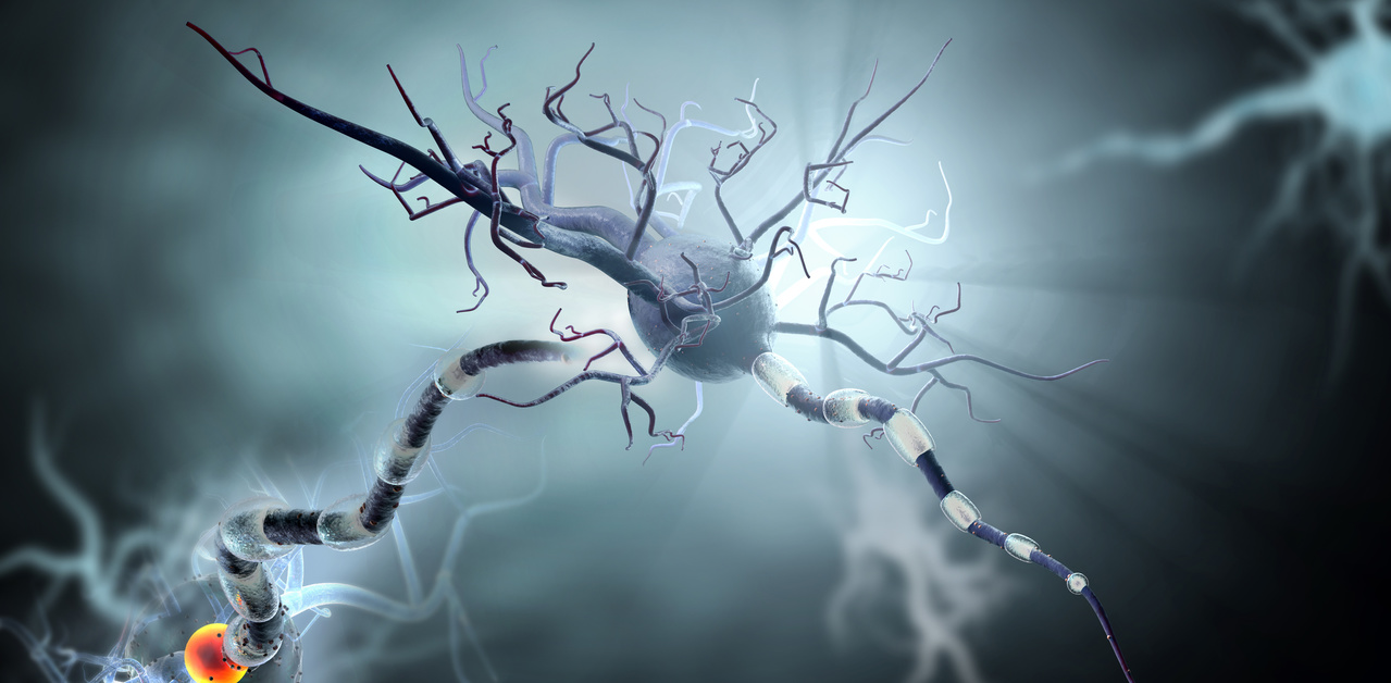 Repurposed Compound to be Tested in Phase 2a Trial in Huntingtons Disease