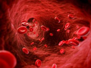 Update on Waldenstrom Macroglobulinemia Treatment Yields Positive