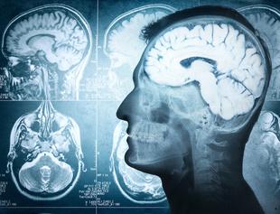 Examining the Link Between Cerebral Small-Vessel Diseases and Motor Symptoms in Parkinson Disease