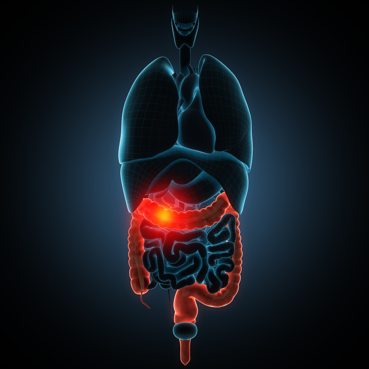 Crohns Disease Treatment, RHB-104, Yields Positive Results in Phase 3 Trial