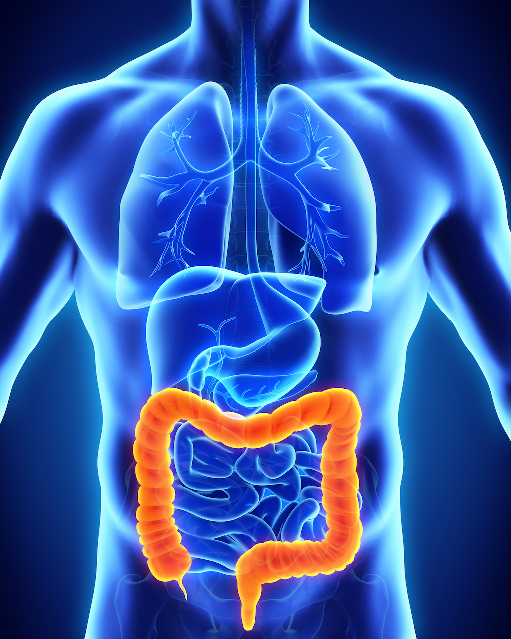 Pooled Analysis Underscores Safety of Biosimilar Infliximab, CT-P13, in Patients With IBD