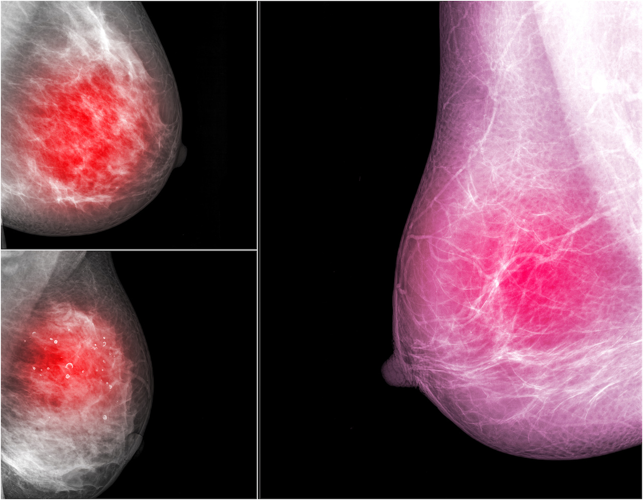 AB MRI Shown to Improve Cancer Detection Rate in Women With Dense Breast Tissue