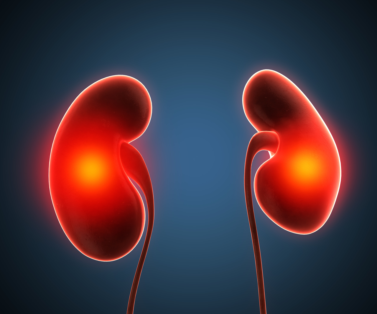 Phase 2 Bardoxolone Trial Shows Efficacy for Alport Syndrome- & ADPKD-Caused CKD