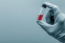 Researchers Present on Immunogenicity of Biosimilar Anti-TNF Agents