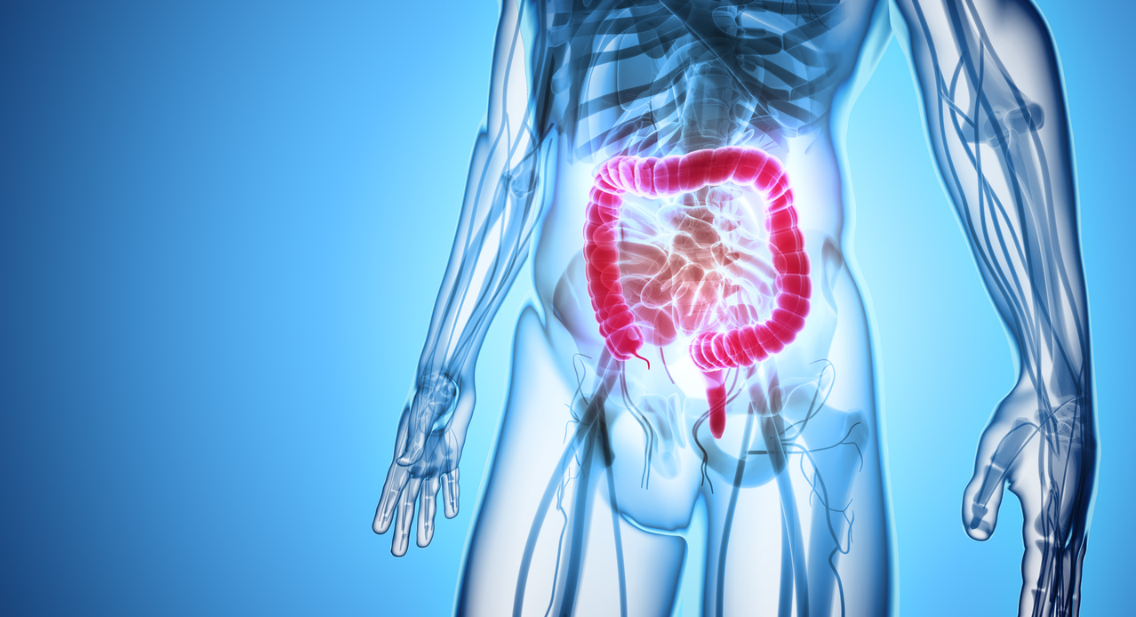 Postchemotherapy MRD Status in Colon Cancer May Predict Survival Rates