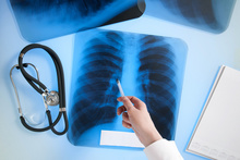 Risk of TB High in Indian Patients With IBD Who Receive Infliximab