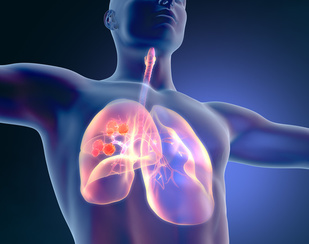 Biosimilar Filgrastim Similar to Reference Product When Used in NSCLC