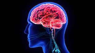 Despite Long-Term ART Treatment, HIV Remains in Cerebrospinal Fluid, Associated With Neurocognitive Problems