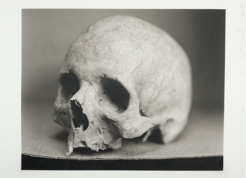 Human Being: F18 Male, 53 years [Skull from Front]