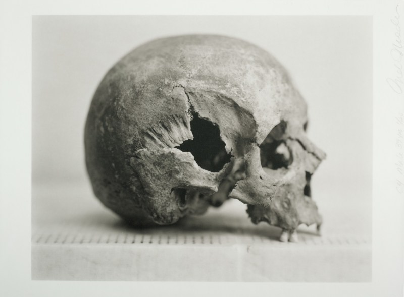 Human Being: C4 Male, 39 years [I] [Skull with hole at ears]