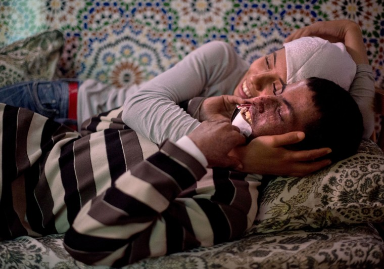 "From left, Wafae Hamouti hugs her brother, Driss Hamouti, 21, both of Tifelt, Morocco, as they watch a late afternoon movie. Driss' lip is suffering with a tumor as a result from Xeroderma Pigmentosum, or XP. XP is a rare genetic condition making the skin and eyes sensitive to ultraviolet light. ""Sometimes he hates himself, but then he forces himself to accept that God made him this way for a reason,Ó DrissÕ sister, Wafae, said. Rachel Woolf/Baltimore Sun"