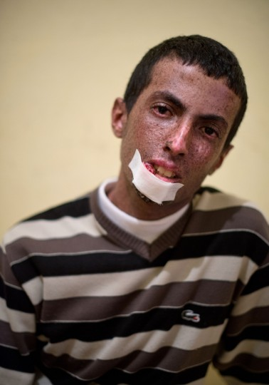 Driss Hamouti, 21, of Tifelt, Morocco. Hamouti's lip is suffering with a tumor as a result from Xeroderma Pigmentosum, or XP. XP is a rare genetic condition making the skin and eyes sensitive to ultraviolet light. Rachel Woolf/Baltimore Sun