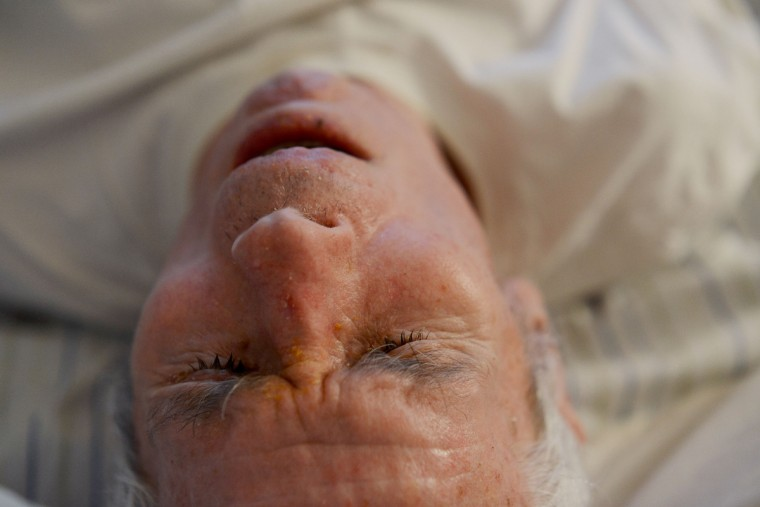 Roger Barnard spends most of his days sleeping and was bedridden for a week or days at a time, thus getting bedsores. Rachel Woolf/Baltimore Sun