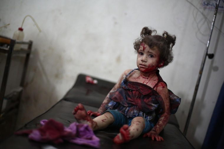 An injured girl looks on as she is being treated at a makeshift hospital in the besieged rebel bastion of Douma, northeast of the Syrian capital Damascus following reported airstrikes by government forces. Some 191,000 people have been killed since an uprising against President Bashar al-Assad's rule erupted in March 2011. (Abd Doumany/Getty Images)