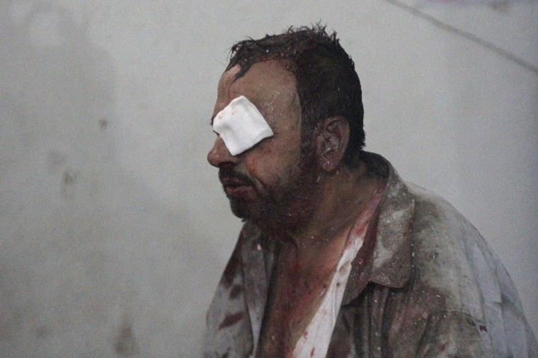 An injured man rests inside a field hospital after what activists said were two air strikes by forces of Syria's President Bashar al-Assad on a market in central Douma, eastern al-Ghouta, near Damascus. (Badra Mamet/Reuters)