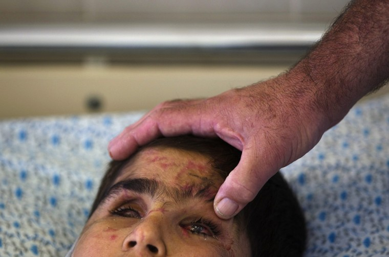A twelve-year-old Syrian boy has his eyes checked by Dr. Yosef Pikel at Ziv Medical Center in Safed, northern Israel September 10, 2014. A hospital spokesperson said the boy was severely wounded, losing the sight in both eyes and suffering injuries to his arm and leg, when a shell exploded near his home in the outskirts of Damascus. After undergoing basic medical treatment in Lebanon, his brother took him by donkey across the border to an Israeli military post, where soldiers took him to hospital in Safed. The spokesperson said the boy was one of 10 Syrians being treated at the hospital, and one of several hundred since February 2013. (Ronen Zvulun/Reuters)