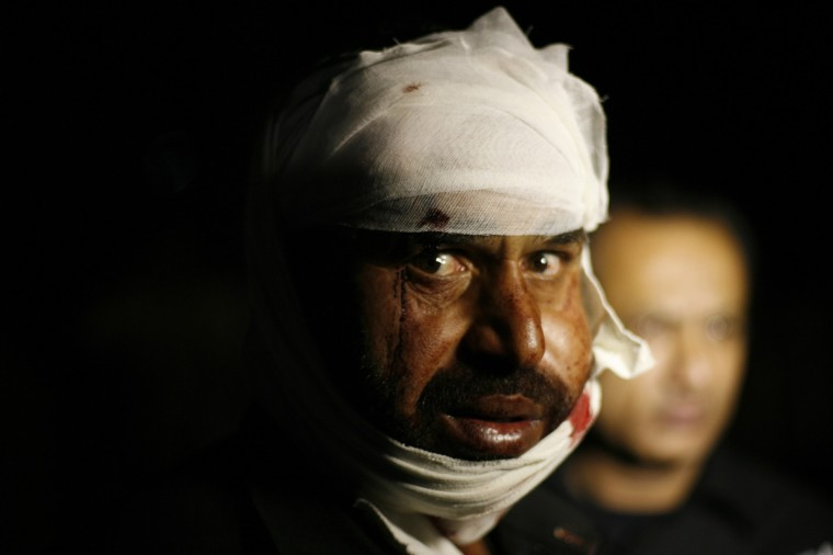 A Pakistani man wounded in a suicide bomb attack, reacts to the camera after received first aid in hospital in Wagah border, near Lahore. At least 45 people were killed on Sunday when a suicide bomber blew himself up on the Pakistani-Indian border, police said, just after a daily ceremony when troops from both sides simultaneously lower the two nations' flags. (Mani Rana/Reuters)