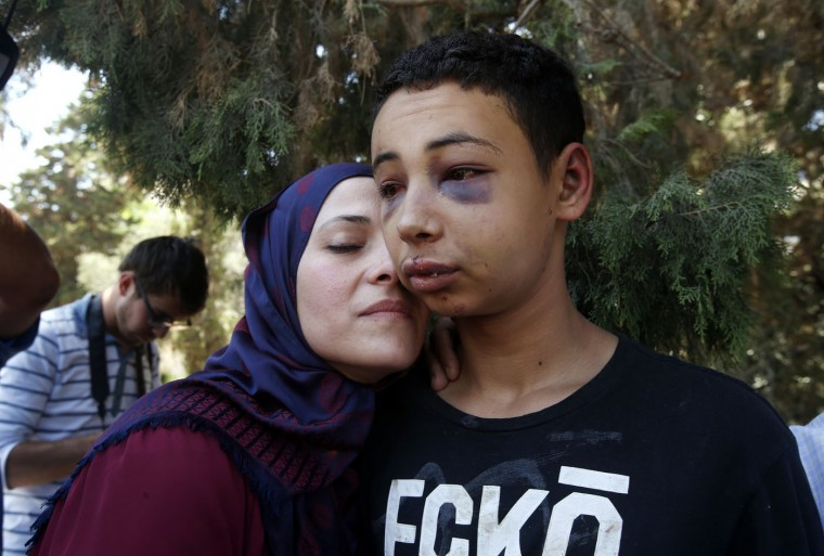 Tariq Khdeir is greeted by his mother after being released from jail in Jerusalem July 6, 2014. The picture was taken outside the courthouse following the release of Khdeir, a 15-year-old American of Palestinian descent, whose beating by Israeli police during a violent protest in East Jerusalem drew U.S. concern. Tariq Khdeir from Tampa, Florida, is a cousin of 16-year-old Palestinian Mohammed Abu Khudair, who was abducted and killed in July 2014 in a suspected revenge attack for the killing of three Israeli youths by Palestinian militants in the occupied West Bank. Three Israelis have been arrested and charged on suspicion of killing Abu Khudair. The abduction and killing of three Israeli youths by Palestinian militants in June 2014 caused alarm throughout Israel and set off a cycle of violence, including the killing of Mohammed Abu Khudair in a suspected revenge attack. Khudair's killing ñ three Israelis have been charged with his murder - led to clashes between Palestinian youths and Israeli police in East Jerusalem. - Ronen Zvulun