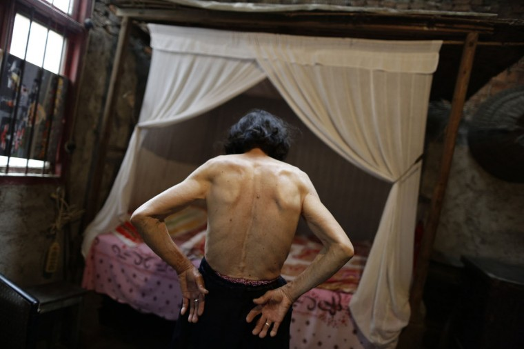 """Qin Zhengyu, 78, shows moles and tumours on her back in her home at Heshan village, in Shimen county, central China's Hunan Province, in this June 4, 2014 file photo. Heshan is in an area rich in realgar, or arsenic disulphide, and is sometimes given the grim label """"cancer village"""". Factories and mines sprang up to process this precious resource but they were shut down in 2011 because of the pollution they caused. Heshan residents said that many had died from cancer caused by arsenic poisoning. I am no stranger to death and during my coverage of the 2008 Sichuan earthquake, I was witness to huge-scale tragedy. But this was the first time I saw people who lived as though they had a sword hanging over their heads all the time. The desperation and hopelessness were unimaginable. - Jason Lee"""