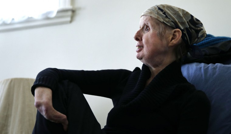 In this Friday, Feb. 20, 2015 photograph, Charla Nash sits in her favorite chair at her second-story apartment in Boston. The Department of Defense is following Nash's progress, after funding her full-face transplant surgery in 2011. Nash lost her face, eyes and hands after being mauled by a chimpanzee in 2009. The military is hoping the information they learn from Nash's rehabilitation can help young, seriously disfigured soldiers returning from war. (AP Photo/Charles Krupa)