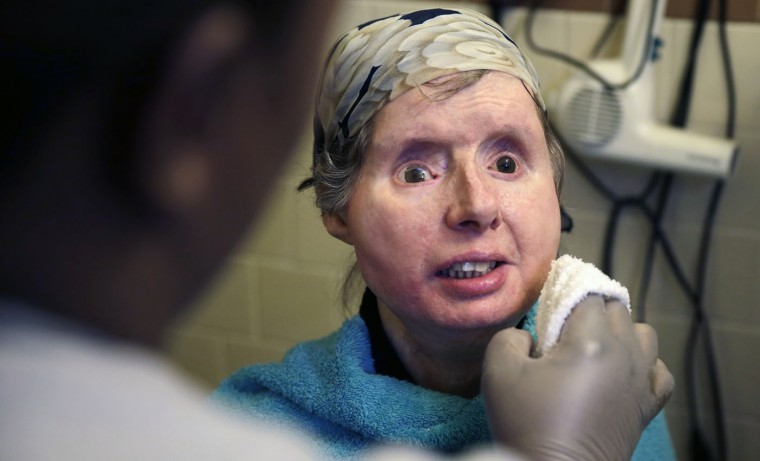 In this Friday, Feb. 20, 2015 photograph, Charla Nash smiles as her care worker washes her face at her apartment in Boston. The Department of Defense is following Nash's progress, after funding her transplant surgery in 2011. Nash lost her face, eyes and hands after being mauled by a chimpanzee in 2009. (AP Photo/Charles Krupa)