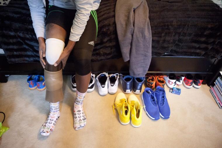 Ture puts on his prosthetic leg. (Jen Rynda/BSMG)