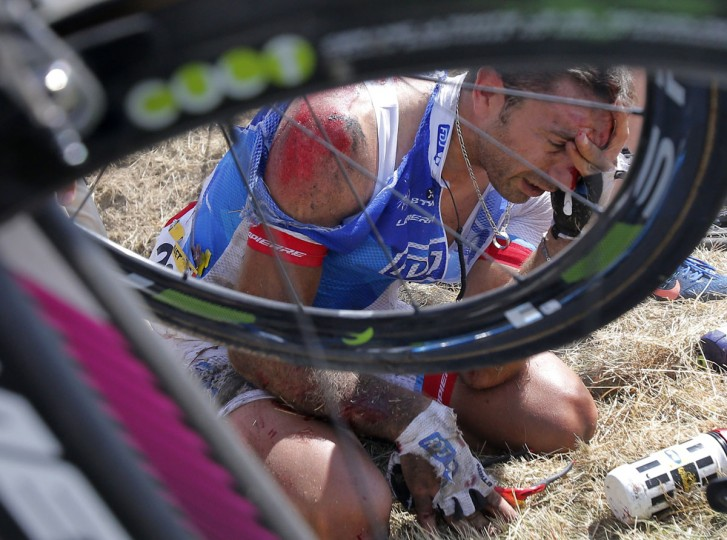 William Bonnet of France holds his head after crashing with several other riders during the third stage of the Tour de France cycling race over 159.5 kilometers (99.1 miles) with start in Antwerp and finish in Huy, Belgium, Monday, July 6, 2015. Bonnet abandoned the race following the crash. (AP Photo/Christophe Ena)