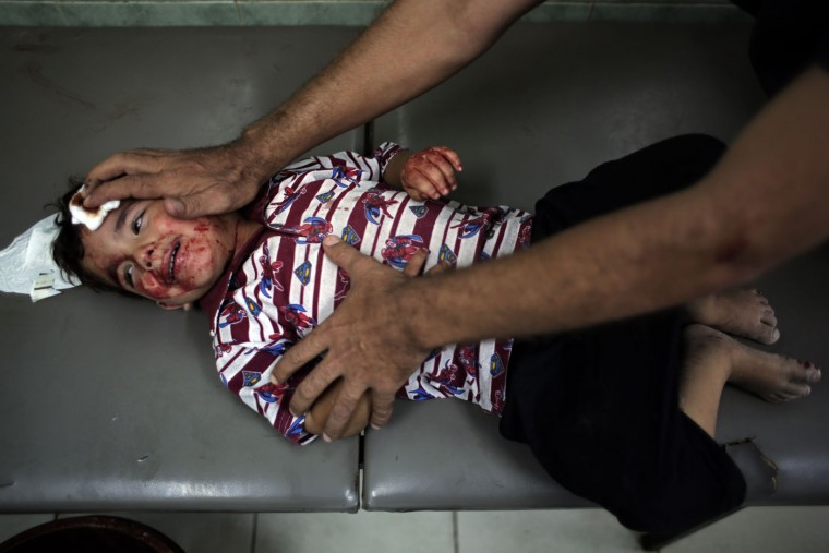 An injured Palestinian child waits to receive treatment at the Najjar hospital in Rafah, southern Gaza Strip, Thursday, Aug. 6, 2015. Palestinian health official said at least four Palestinians from the same family were killed and 13 people were injured in the Gaza Strip on Thursday by an explosion of Israeli military ordnance left over from last summer's war. (AP Photo/ Khalil Hamra)