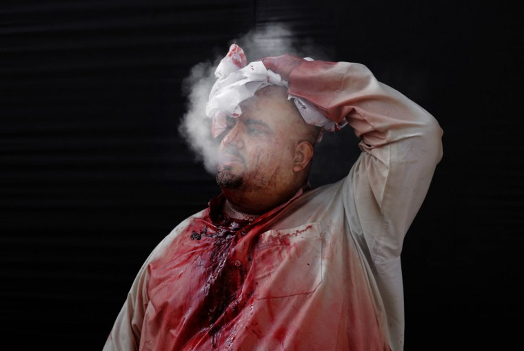A Bahraini Shiite Muslim covered with blood smokes after flagellating himself with a sword as part of the Arbaeen ritual in Muharraq, Bahrain, Thursday, Dec. 3, 2015. (AP Photo/Hasan Jamali)