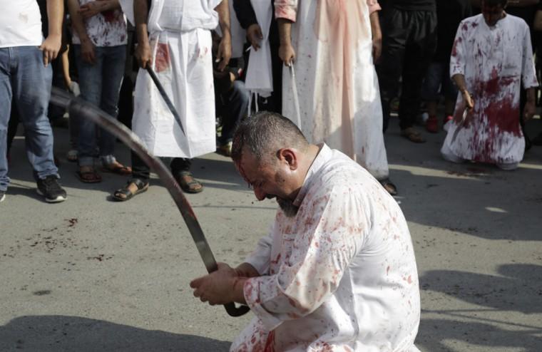 A Bahraini Shiite Muslim flagellates himself with a sword as part of the Arbaeen ritual in Muharraq, Bahrain, Thursday, Dec. 3, 2015. (AP Photo/Hasan Jamali)