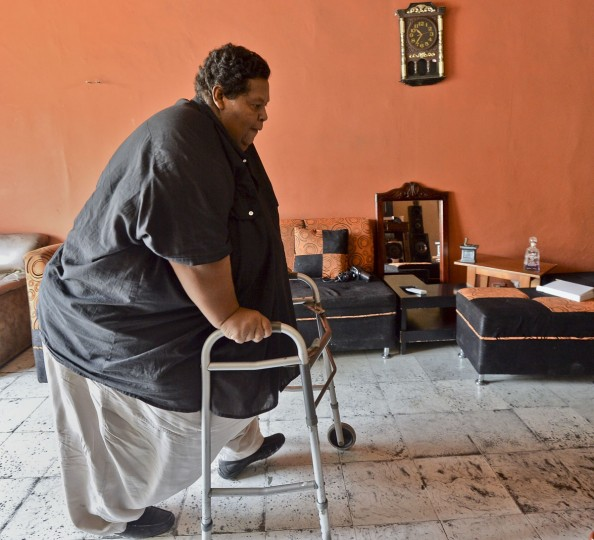 Oscar Vasquez Morales walks at his home on March 19, 2016, in Palmira, Colombia. (LUIS ROBAYO/AFP/Getty Images)