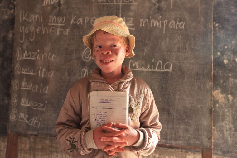 "Mina Godfrey, 13, is seen in class at her school in this Tuesday, May, 24, 2016 photo in Machinga. Godfrey says she was placed first in her recent school exams and hopes one day to become a lawyer. But this comes after she survived abduction from her bed at night by her uncle. At least 18 Albino people have been killed in Malawi in a ""steep upsurge in killings"" since November 2014, and five others have been abducted and remain missing, a new Amnesty International report released Tuesday says. (AP Photo/Tsvangirayi Mukwazhi)"