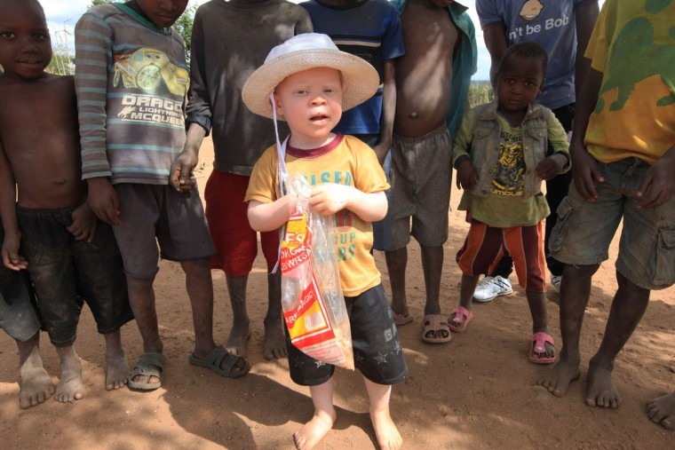 "Cassim Jaffalie, 3, is seen with his friends at their family home in this Monday, May, 23, 2016 photo in Machinga. His father, Razik Jaffalie, gave up his work as a bicycle taxi operator to protect his son in a country where there has been an increase in albinism attacks. At least 18 Albino people have been killed in Malawi in a ""steep upsurge in killings"" since November 2014, and five others have been abducted and remain missing, a new Amnesty International report released Tuesday, June 7, 2016 says. (AP Photo/Tsvangirayi Mukwazhi)"