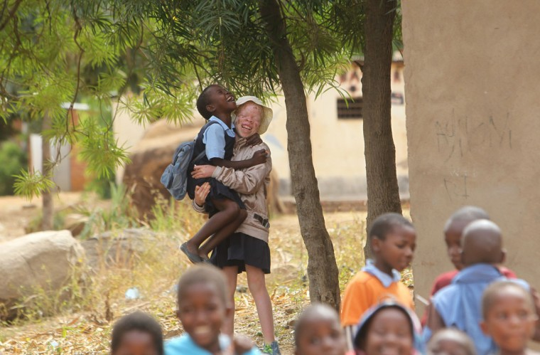 "Mina Godfrey, 13, plays with her friends at her school in this Tuesday, May, 24, 2016 photo in Machinga. Godfrey says she was placed first in her recent school exams and hopes one day to become a lawyer. But this comes after she survived abduction from her bed at night by her uncle. At least 18 Albino people have been killed in Malawi in a ""steep upsurge in killings"" since November 2014, and five others have been abducted and remain missing, a new Amnesty International report released Tuesday says. (AP Photo/Tsvangirayi Mukwazhi)"